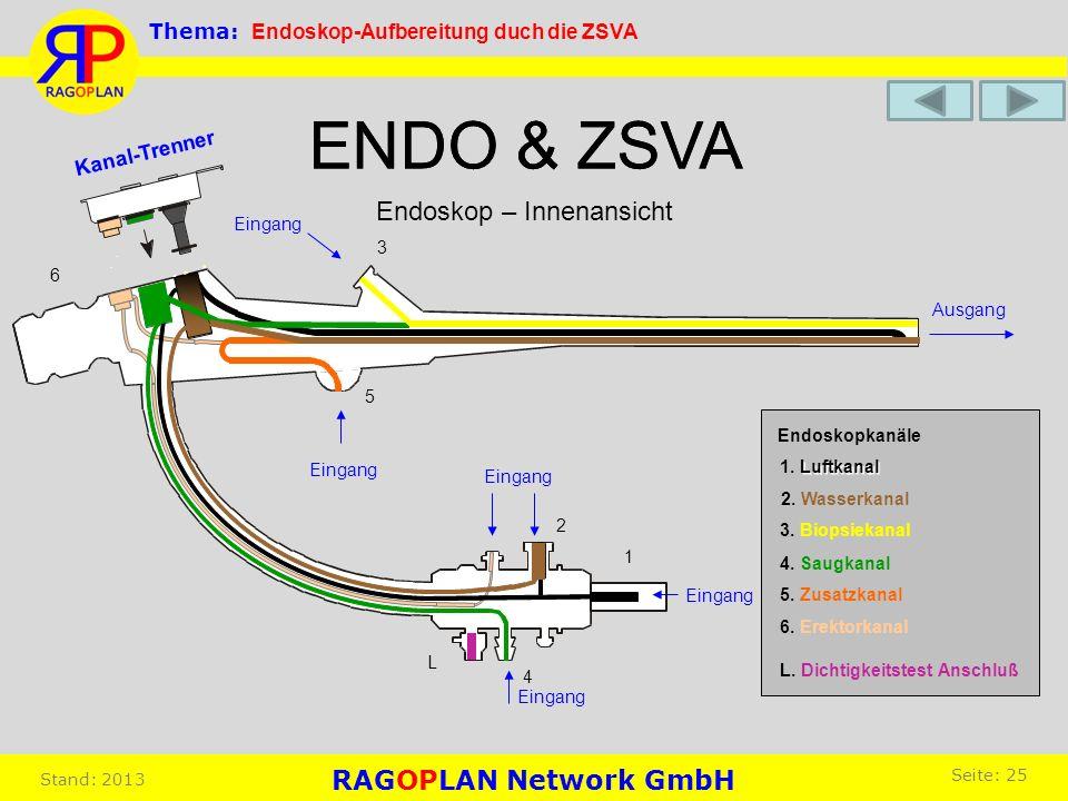 ENDO & ZSVA ENDO & ZSVA Endoskop – Innenansicht RAGOPLAN Network GmbH
