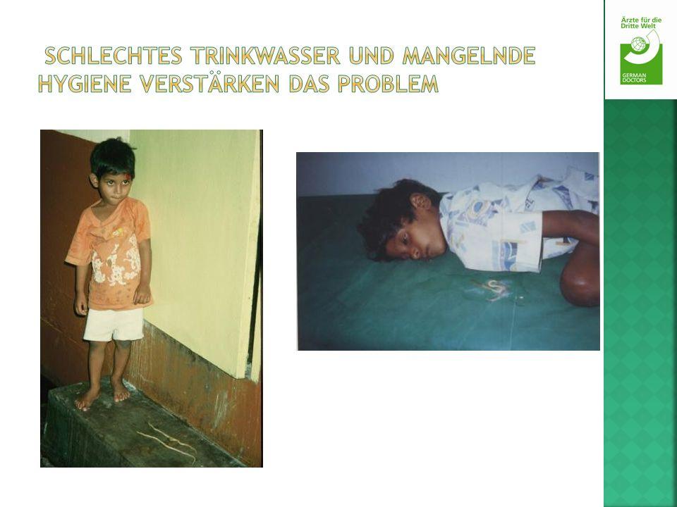 Schlechtes Trinkwasser und mangelnde Hygiene verstärken das Problem
