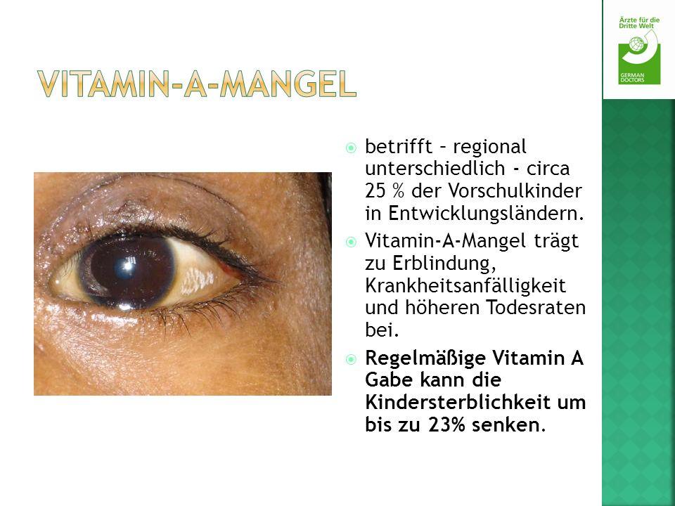 Vitamin-A-Mangel betrifft – regional unterschiedlich - circa 25 % der Vorschulkinder in Entwicklungsländern.