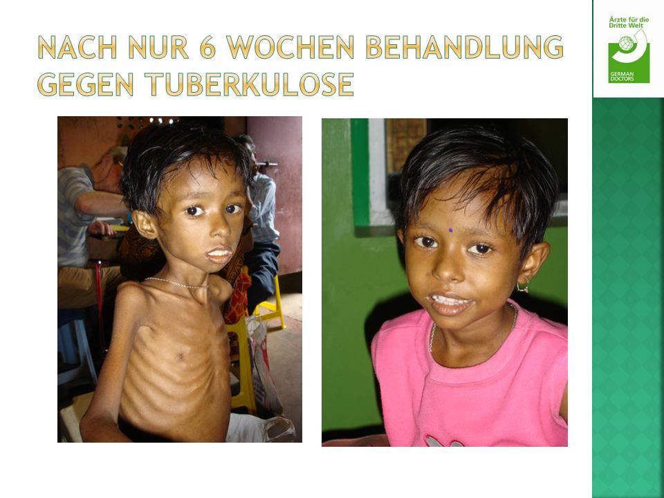 Nach nur 6 Wochen Behandlung gegen Tuberkulose