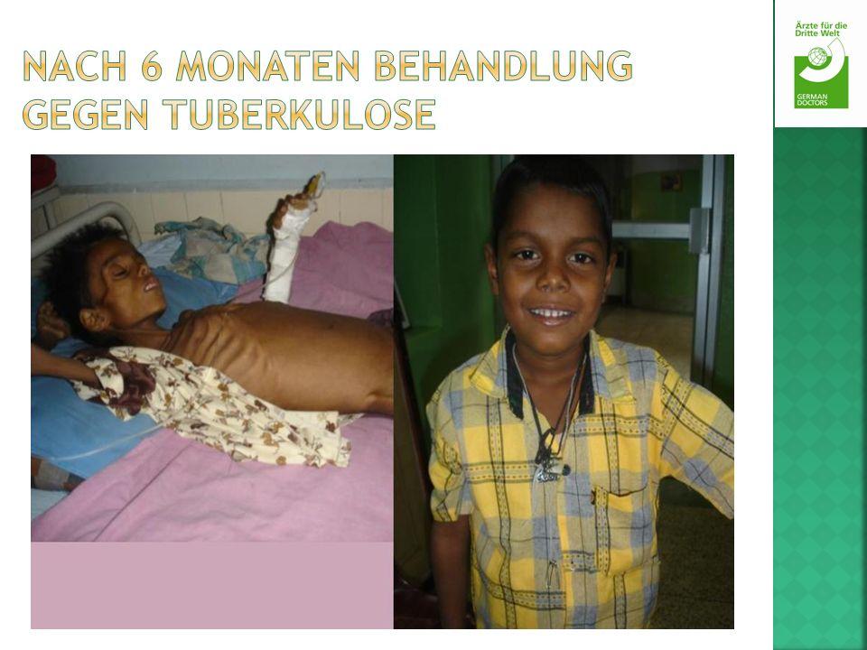 Nach 6 Monaten Behandlung gegen Tuberkulose
