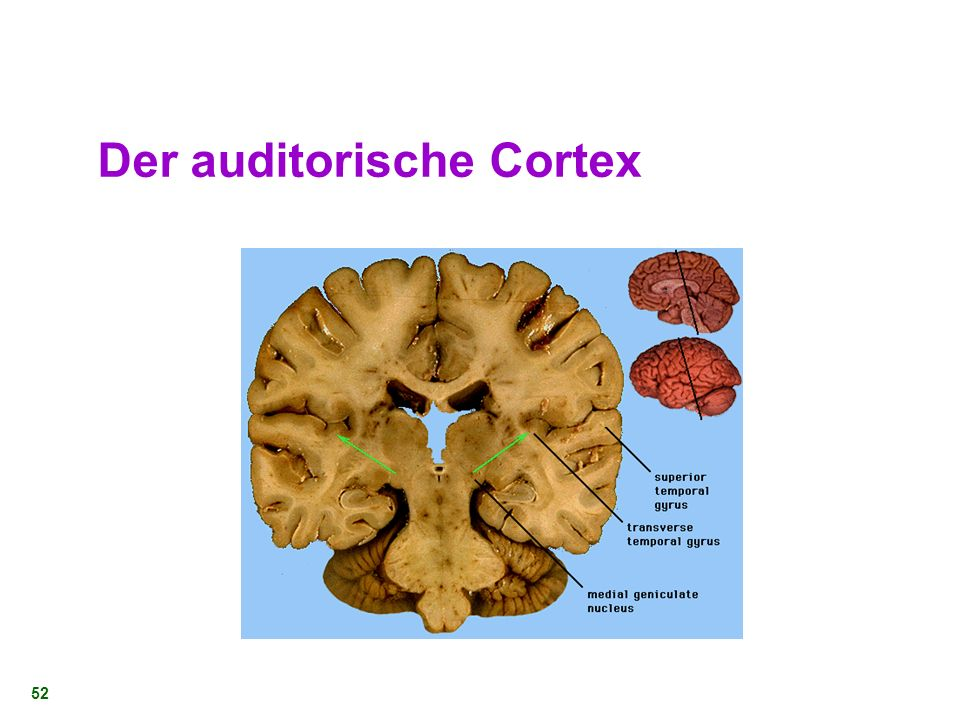 Der auditorische Cortex