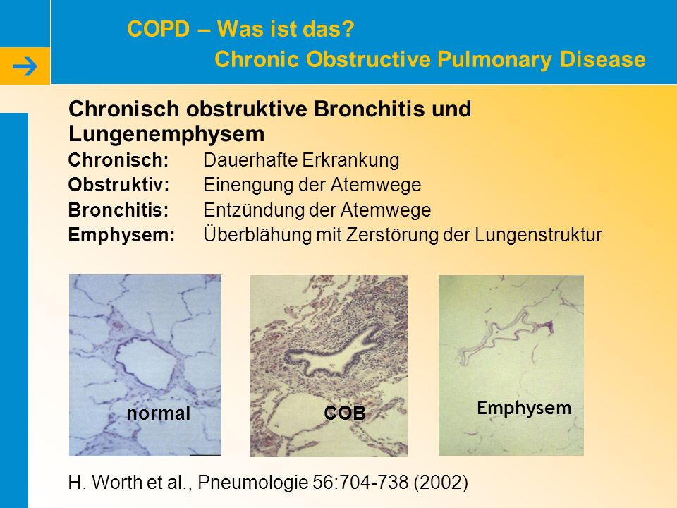 COPD – Was ist das Chronic Obstructive Pulmonary Disease