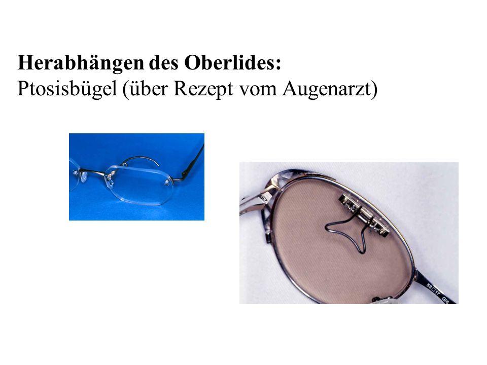 Herabhängen des Oberlides: Ptosisbügel (über Rezept vom Augenarzt)