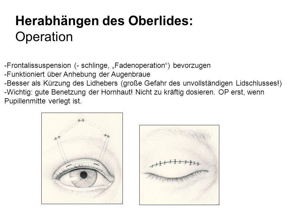 Herabhängen des Oberlides: Operation
