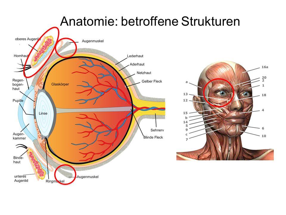 Anatomie: betroffene Strukturen