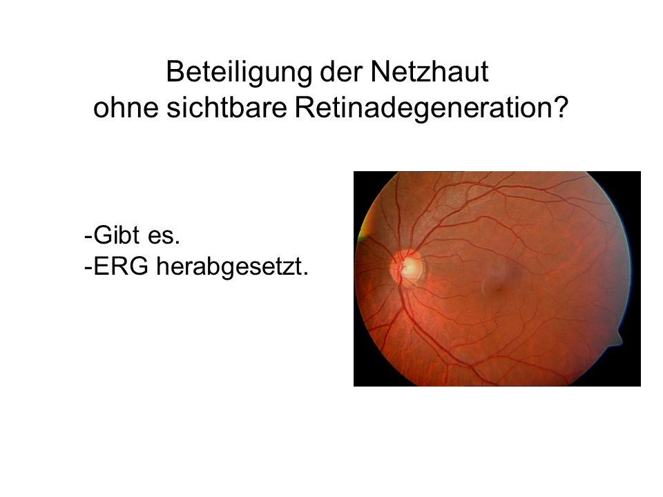 Beteiligung der Netzhaut ohne sichtbare Retinadegeneration