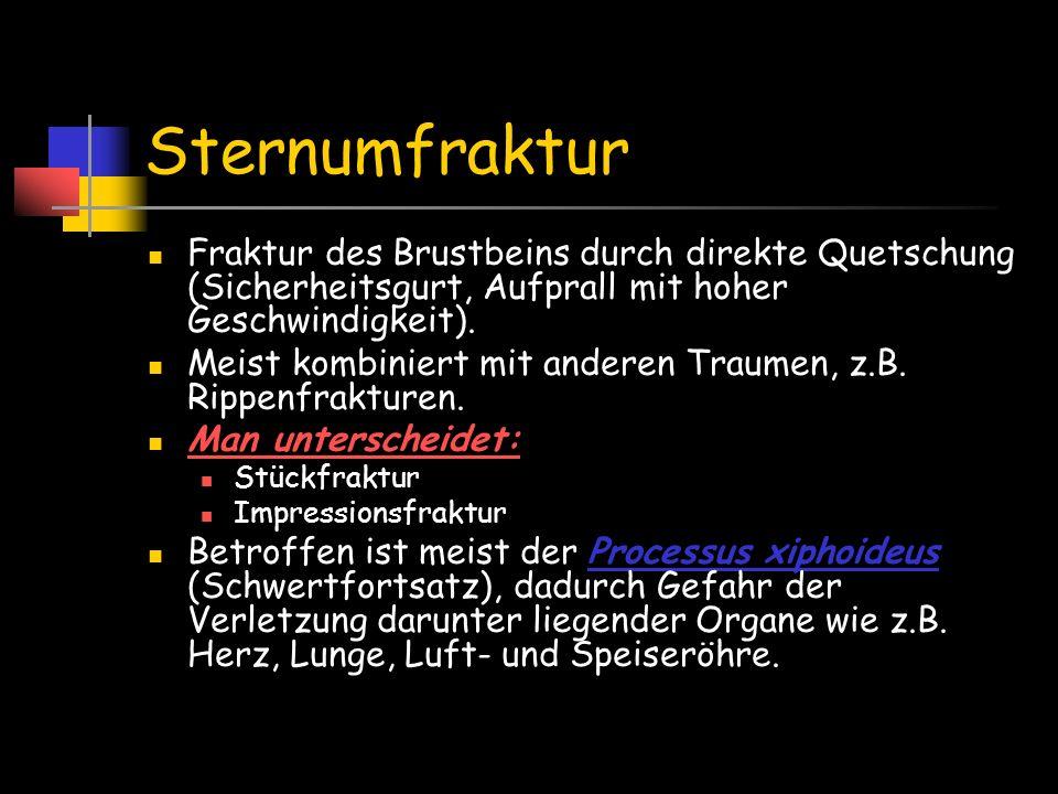 Sternumfraktur Fraktur des Brustbeins durch direkte Quetschung (Sicherheitsgurt, Aufprall mit hoher Geschwindigkeit).
