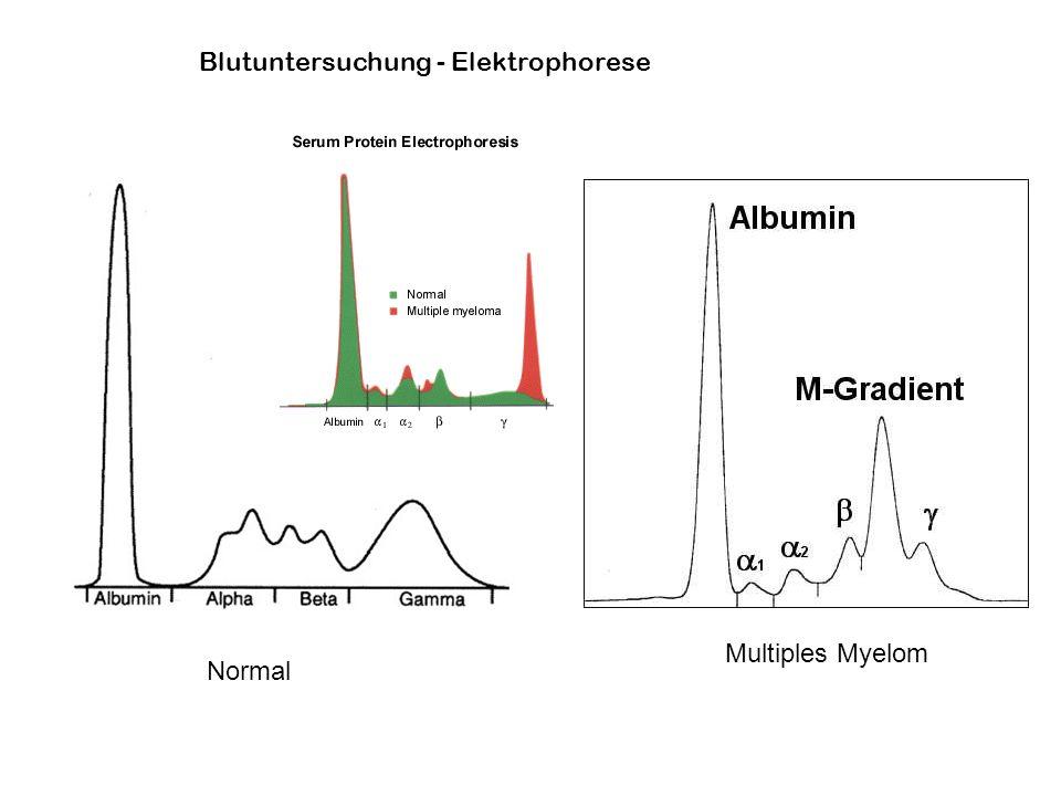 Blutuntersuchung - Elektrophorese