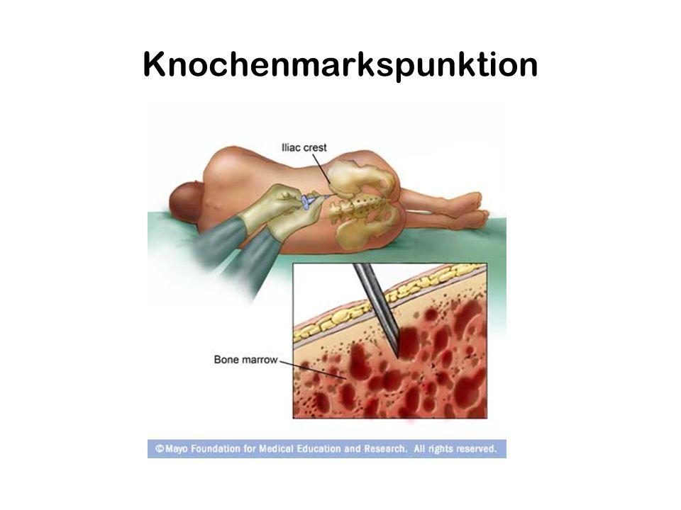 Knochenmarkspunktion