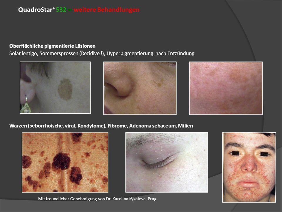QuadroStar+ 532 – weitere Behandlungen