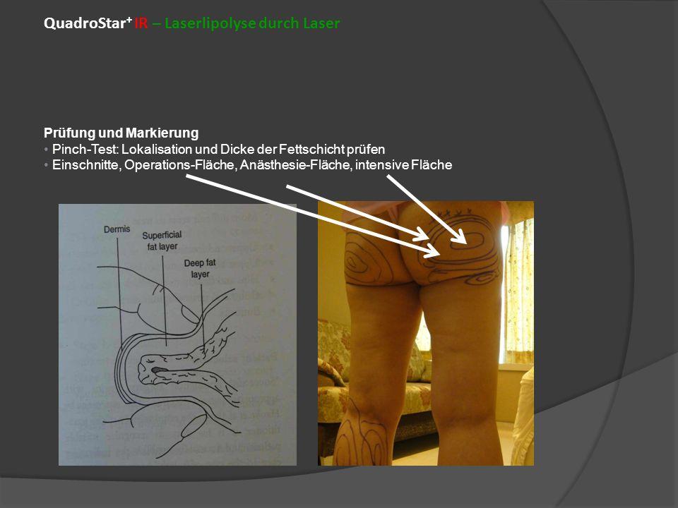 QuadroStar+ IR – Laserlipolyse durch Laser