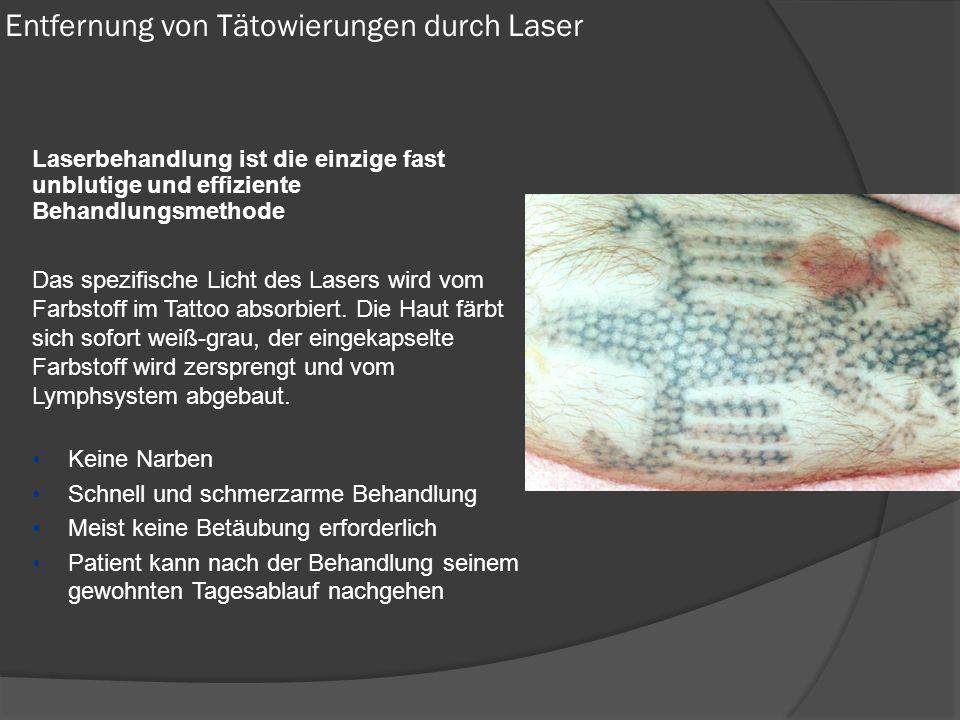 Entfernung von Tätowierungen durch Laser