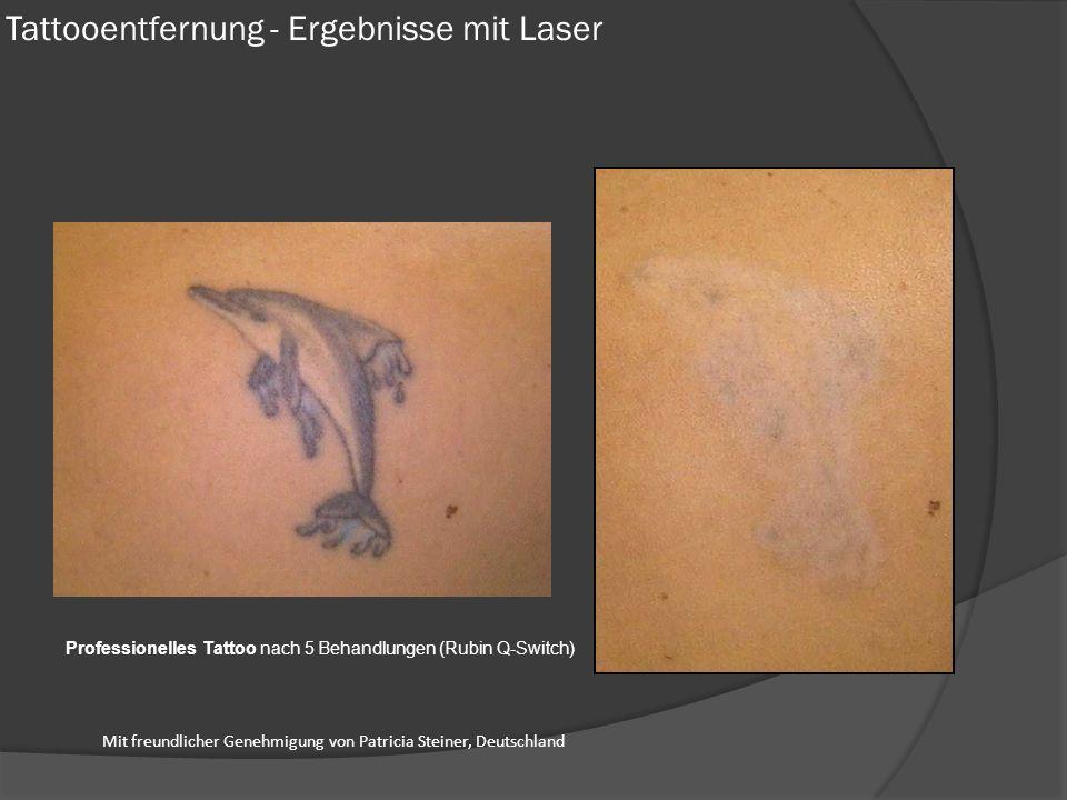 Tattooentfernung - Ergebnisse mit Laser
