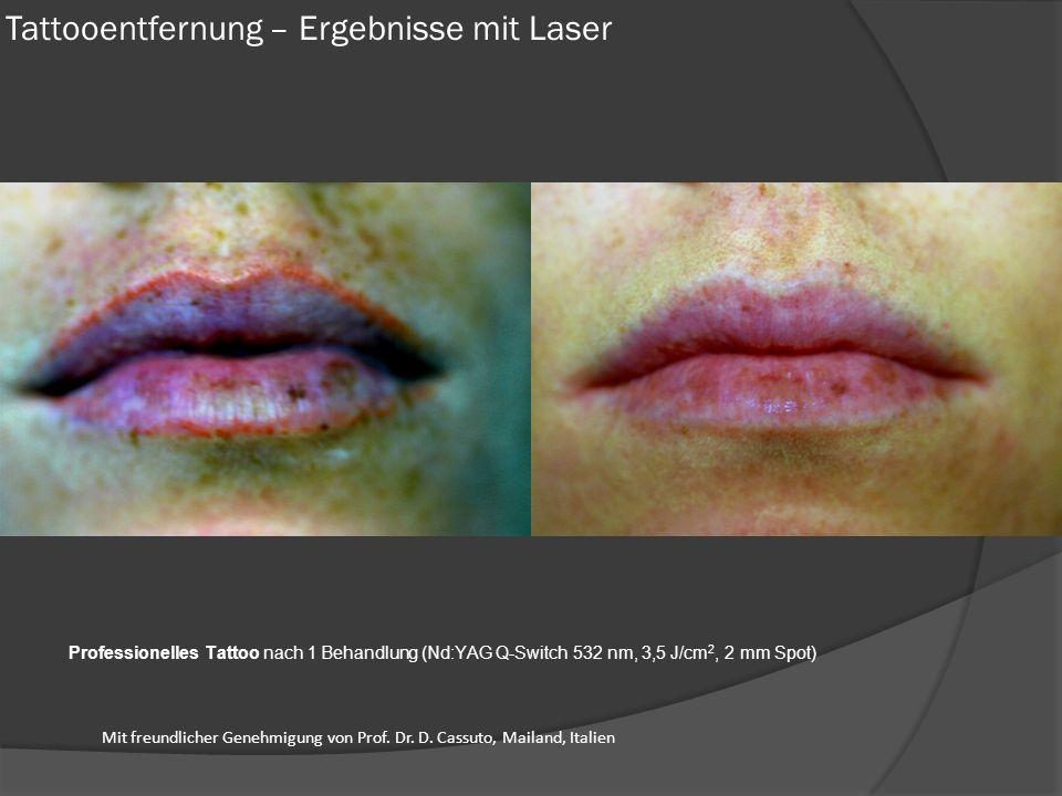 Tattooentfernung – Ergebnisse mit Laser