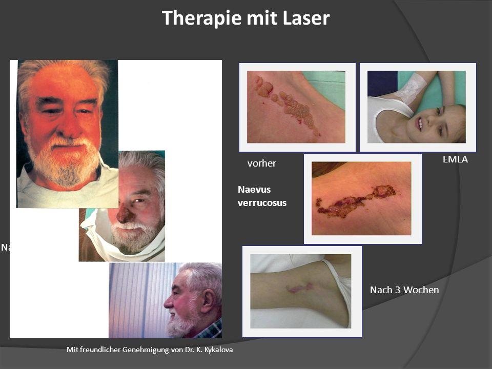 Therapie mit Laser Rhinophym Vorher EMLA vorher Naevus verrucosus