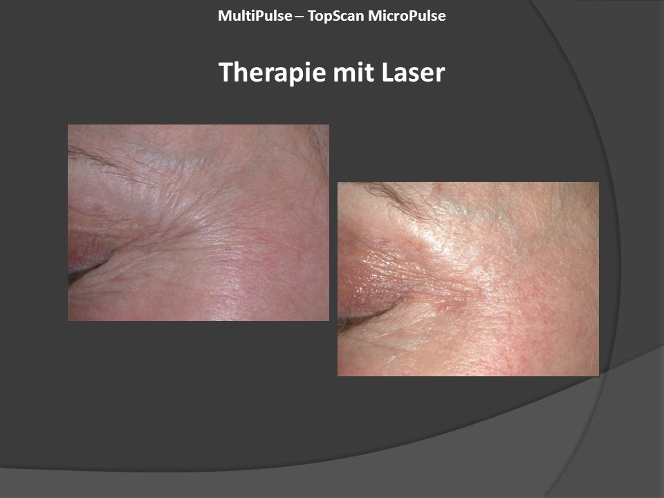 MultiPulse – TopScan MicroPulse