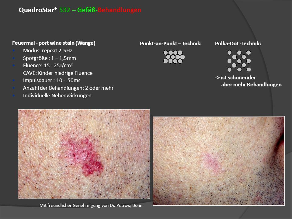 QuadroStar+ 532 – Gefäß-Behandlungen