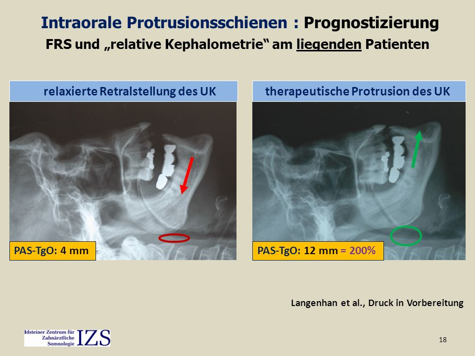 Intraorale Protrusionsschienen : Prognostizierung