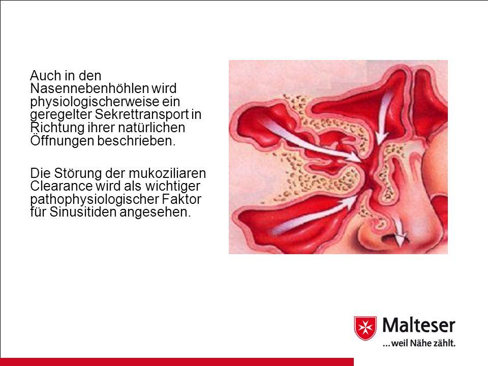 Mittwochssprechstunde Entzündung der Nasennebenhöhlen - ppt video ...