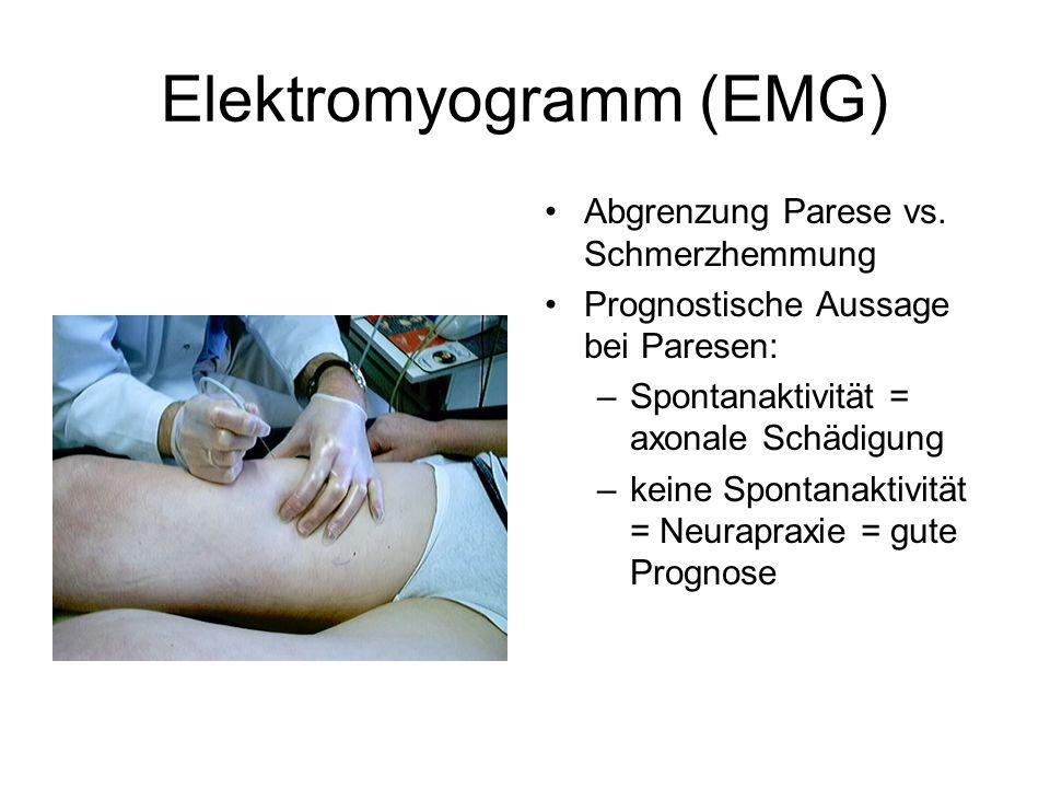 Elektromyogramm (EMG)