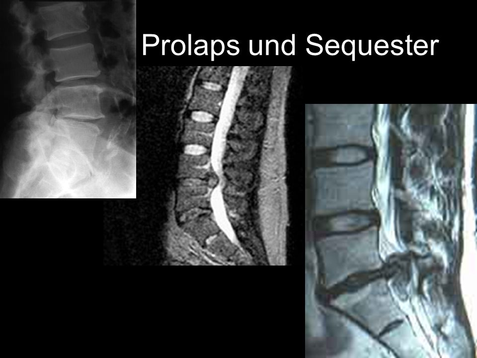 Prolaps und Sequester