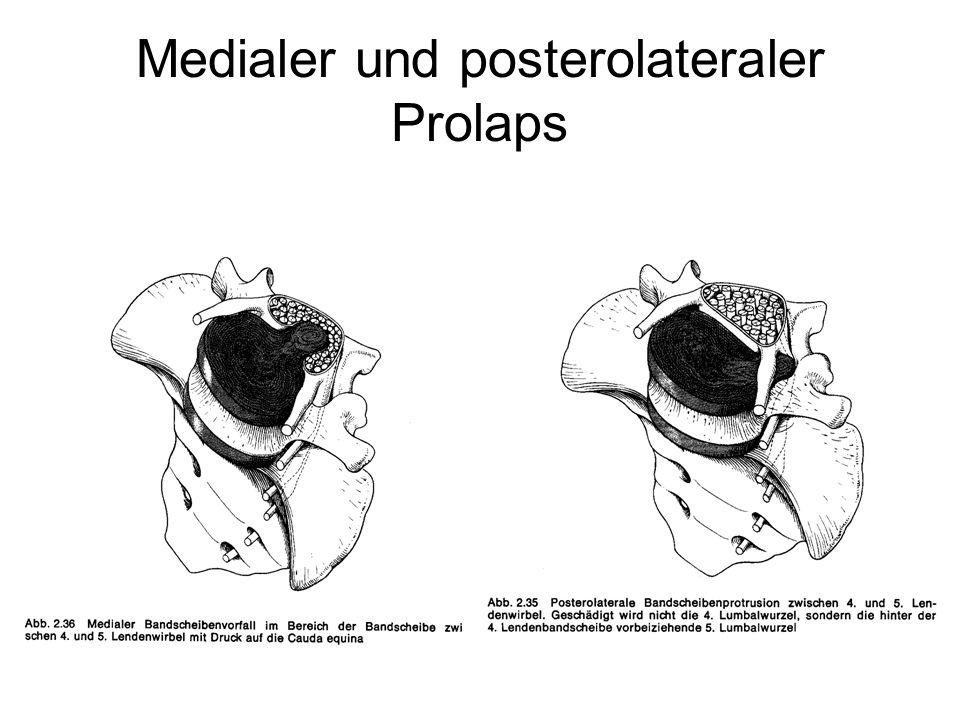 Medialer und posterolateraler Prolaps