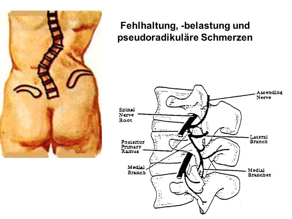 Fehlhaltung, -belastung und pseudoradikuläre Schmerzen