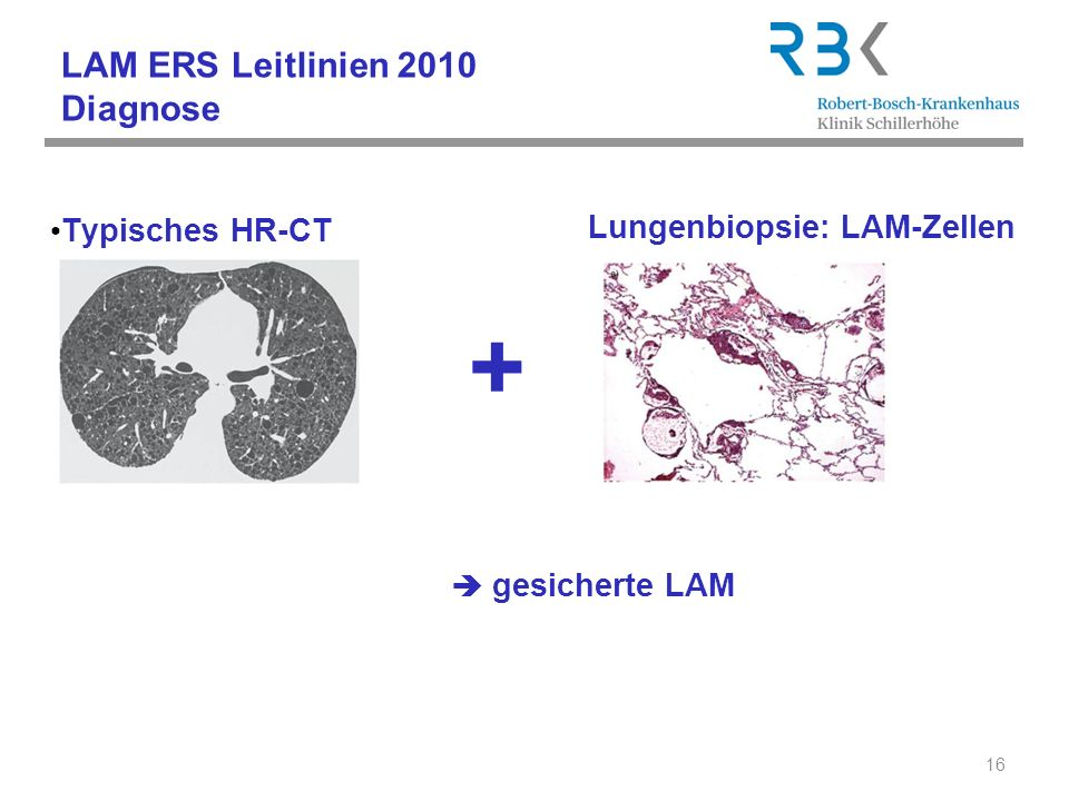 LAM ERS Leitlinien 2010 Diagnose