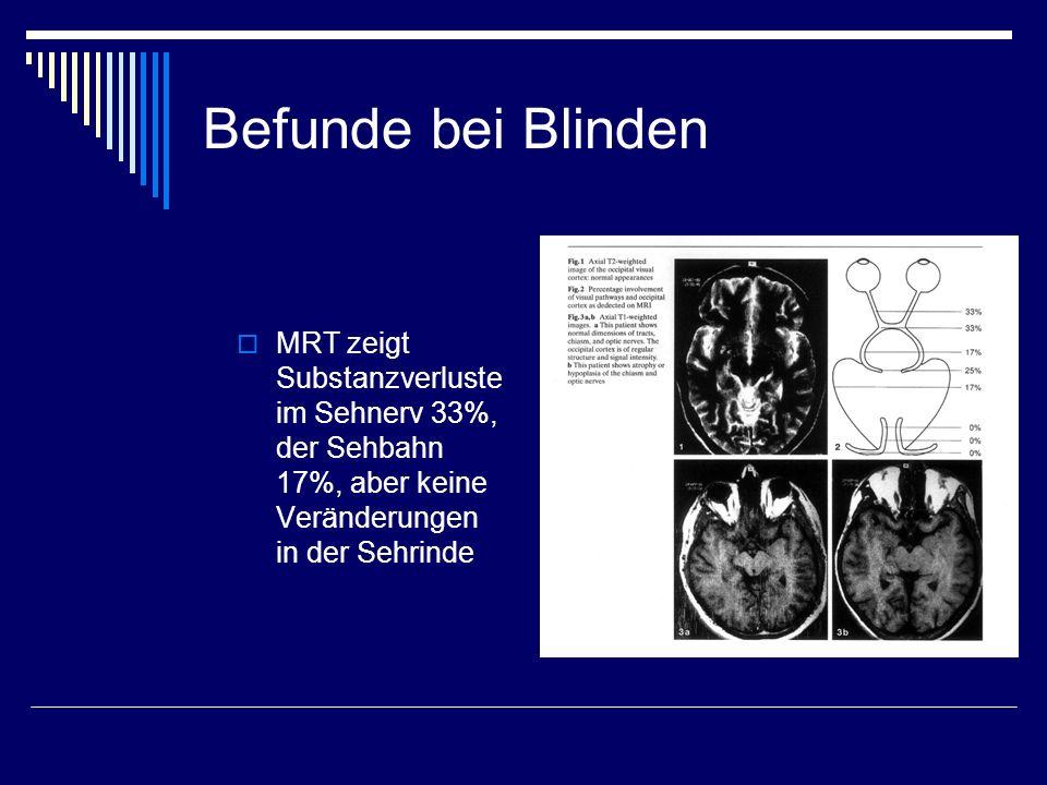 Befunde bei Blinden MRT zeigt Substanzverluste im Sehnerv 33%, der Sehbahn 17%, aber keine Veränderungen in der Sehrinde.