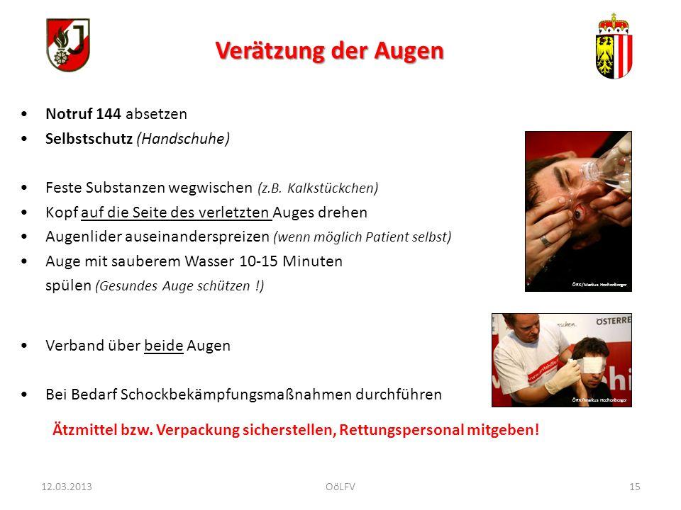 Verätzung der Augen Notruf 144 absetzen Selbstschutz (Handschuhe)