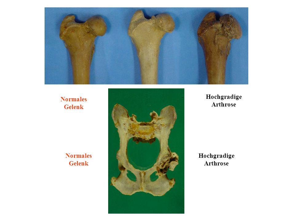 Hochgradige Arthrose Normales Gelenk Normales Gelenk Hochgradige Arthrose