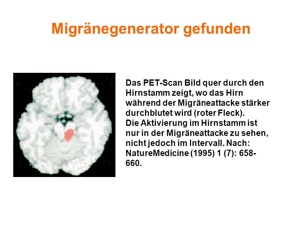 Migränegenerator gefunden