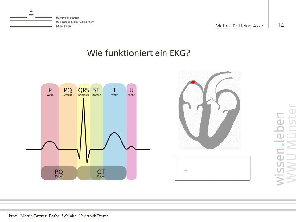 Wie funktioniert ein EKG