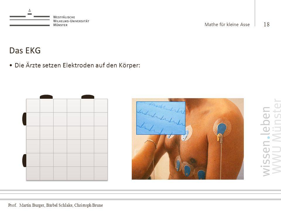 Das EKG Die Ärzte setzen Elektroden auf den Körper: