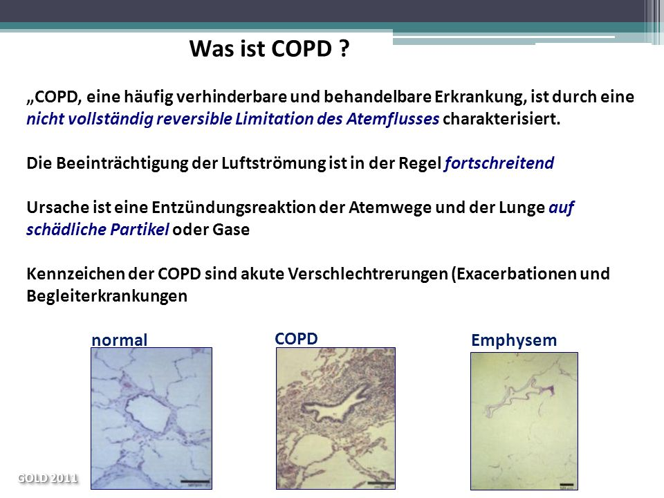 Was ist COPD