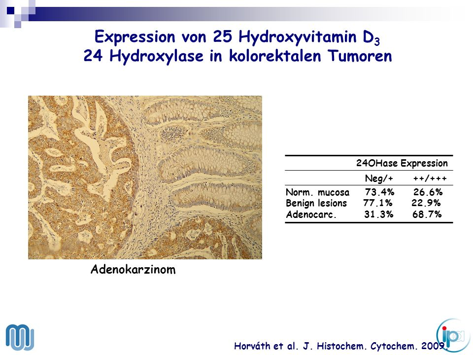 Expression von 25 Hydroxyvitamin D3