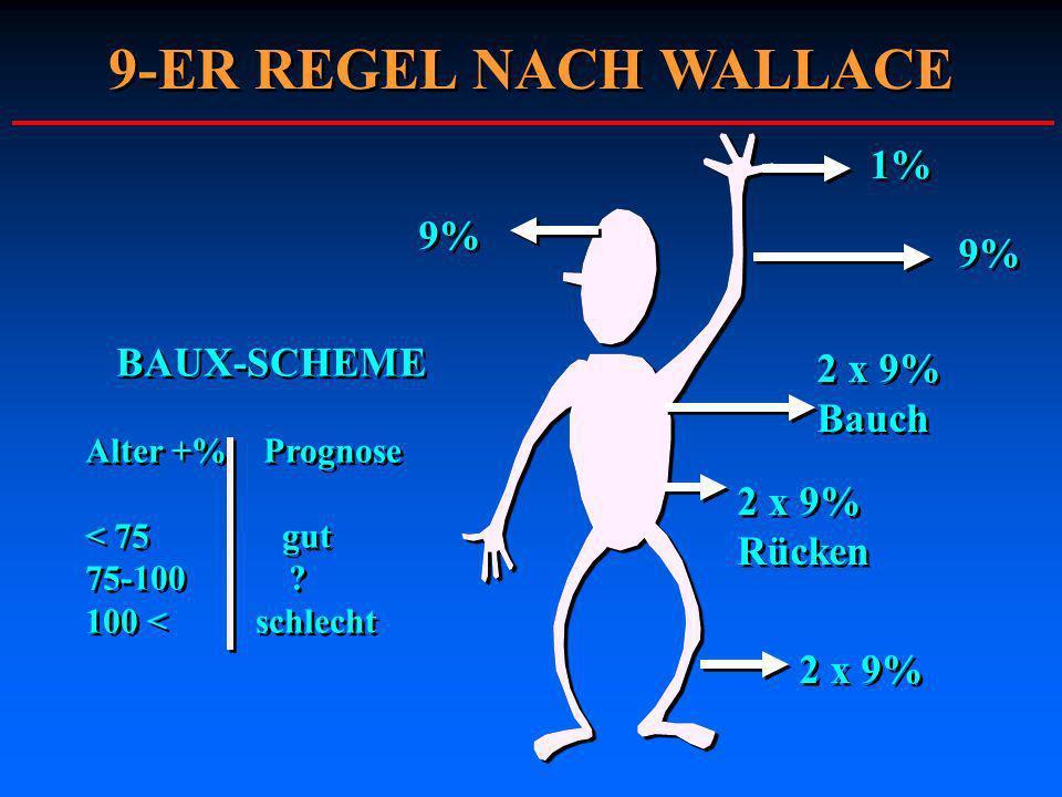 9-ER REGEL NACH WALLACE 1% 9% 9% BAUX-SCHEME 2 x 9% Bauch 2 x 9%