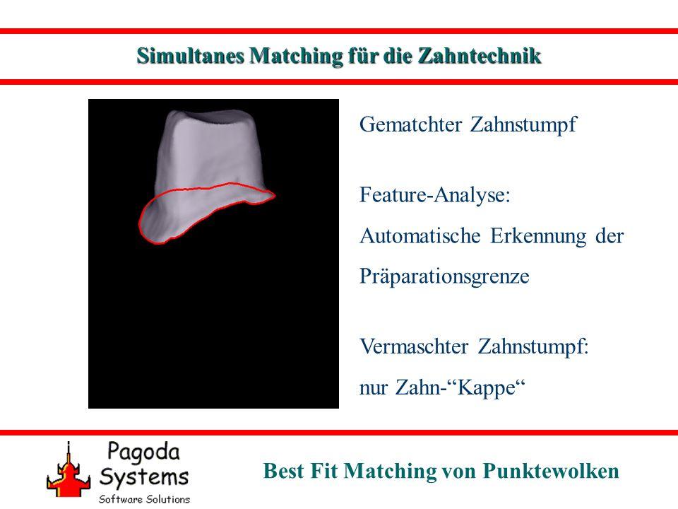 Simultanes Matching für die Zahntechnik