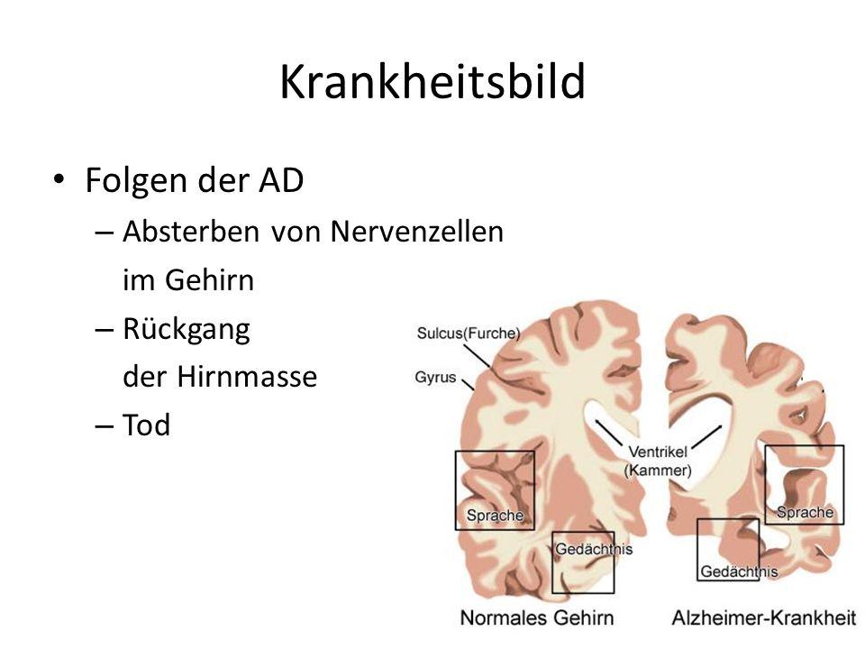Krankheitsbild Folgen der AD Absterben von Nervenzellen im Gehirn