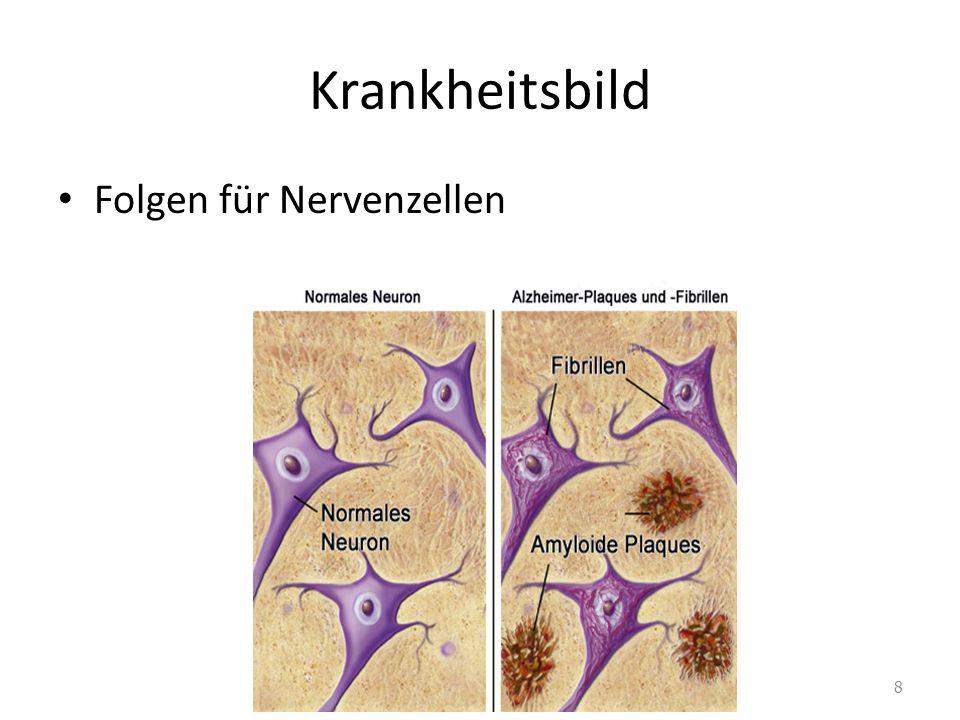 Krankheitsbild Folgen für Nervenzellen