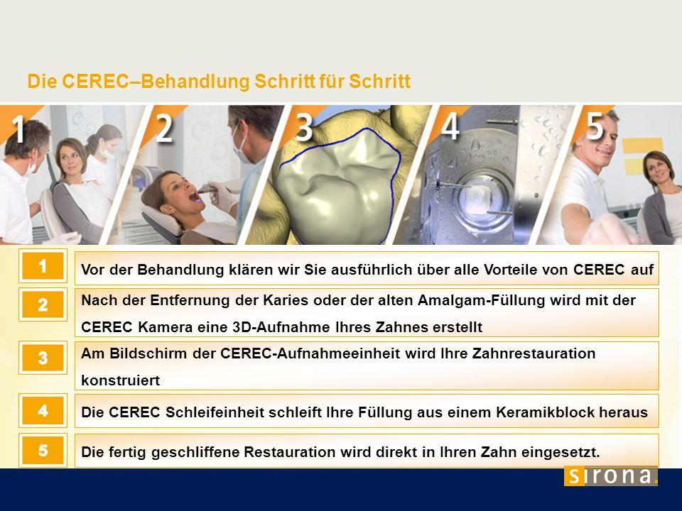 Die CEREC–Behandlung Schritt für Schritt