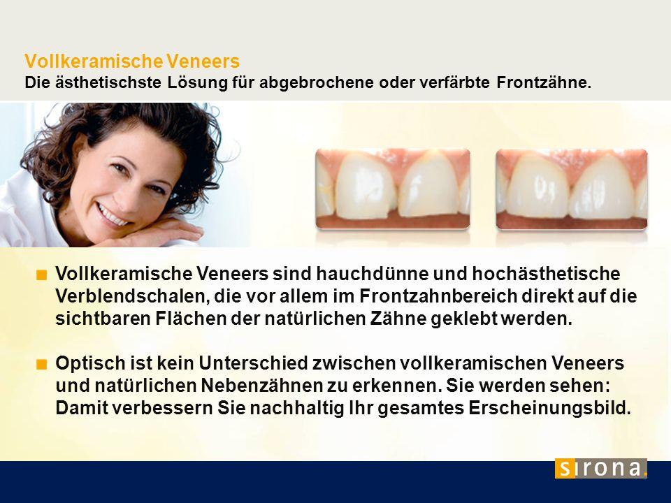 Vollkeramische Veneers Die ästhetischste Lösung für abgebrochene oder verfärbte Frontzähne.