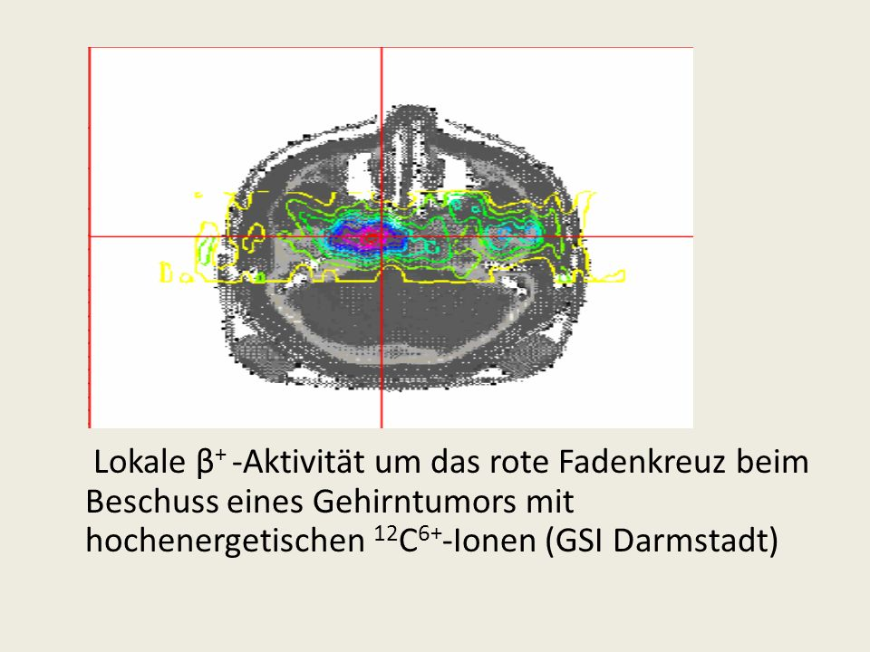 Lokale β+ -Aktivität um das rote Fadenkreuz beim Beschuss eines Gehirntumors mit hochenergetischen 12C6+-Ionen (GSI Darmstadt)