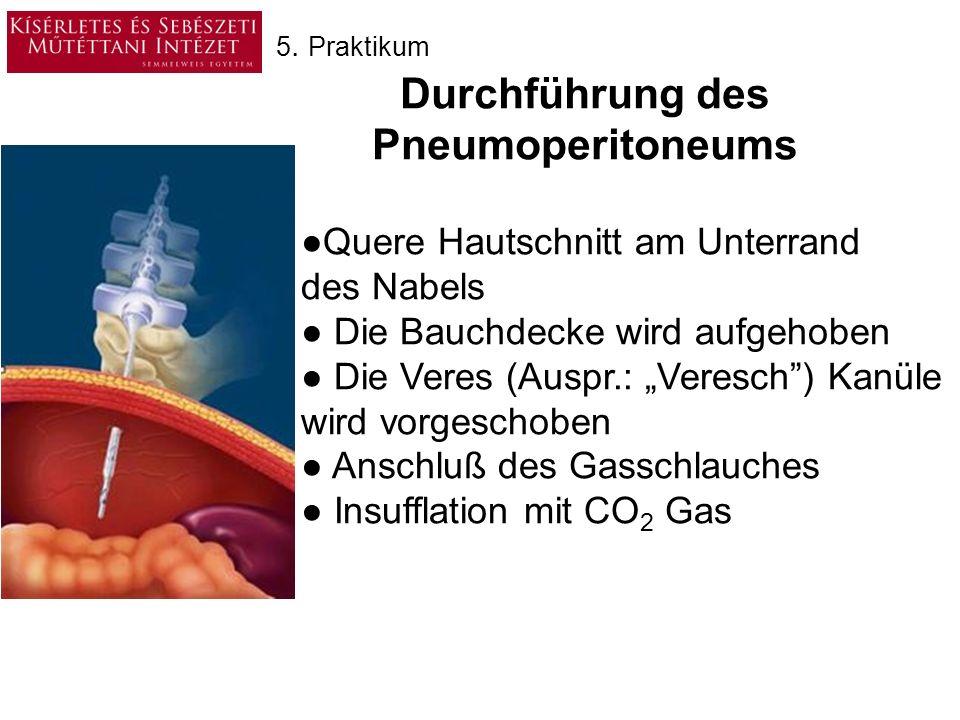 Durchführung des Pneumoperitoneums