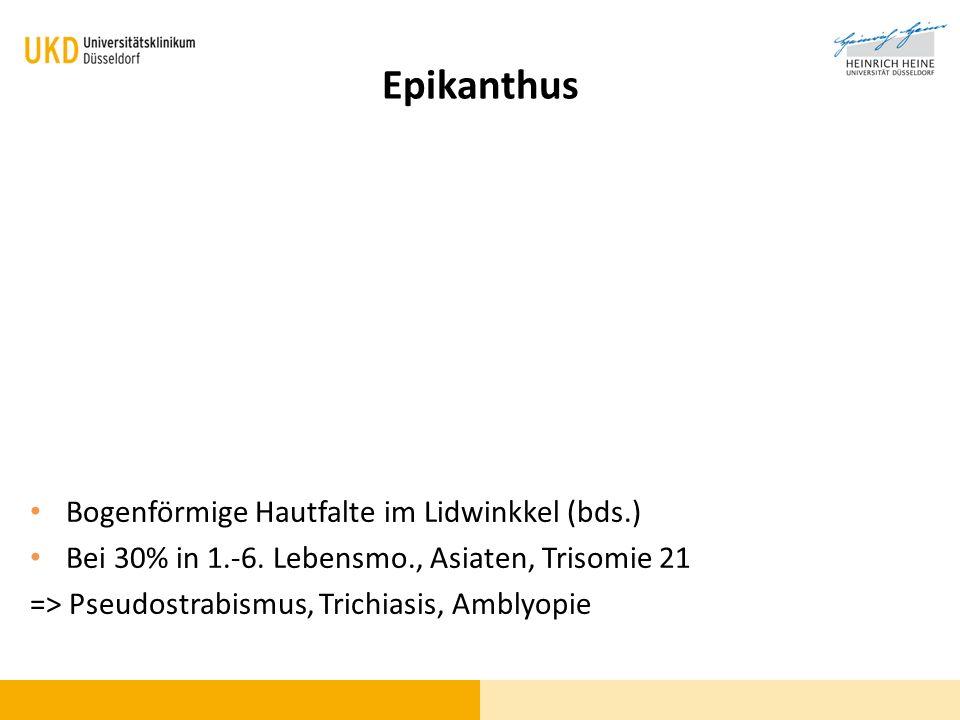 Epikanthus Bogenförmige Hautfalte im Lidwinkkel (bds.)