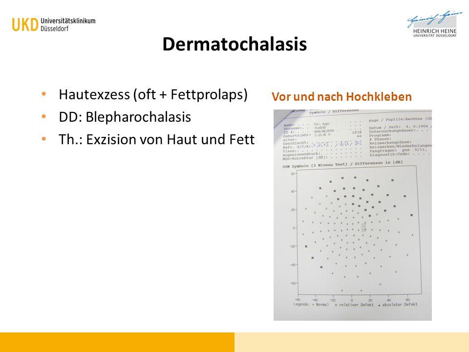 Dermatochalasis Hautexzess (oft + Fettprolaps) DD: Blepharochalasis