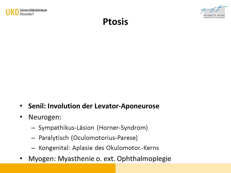 Ptosis Senil: Involution der Levator-Aponeurose Neurogen: