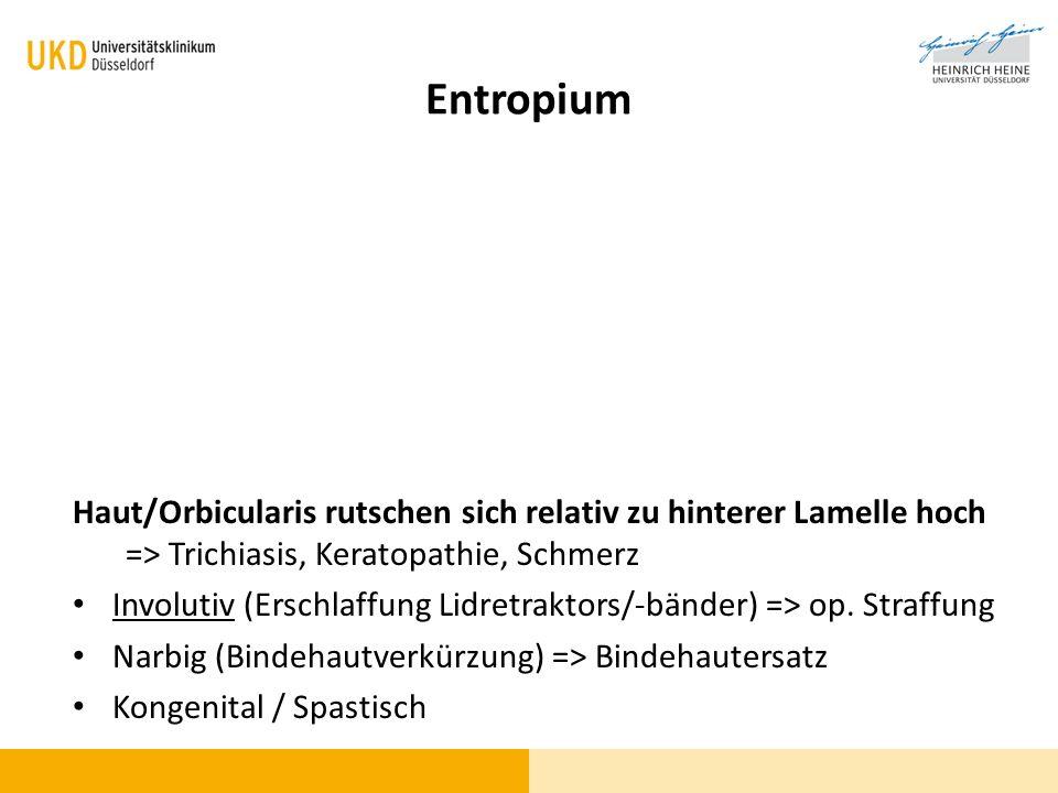 Entropium Haut/Orbicularis rutschen sich relativ zu hinterer Lamelle hoch => Trichiasis, Keratopathie, Schmerz.