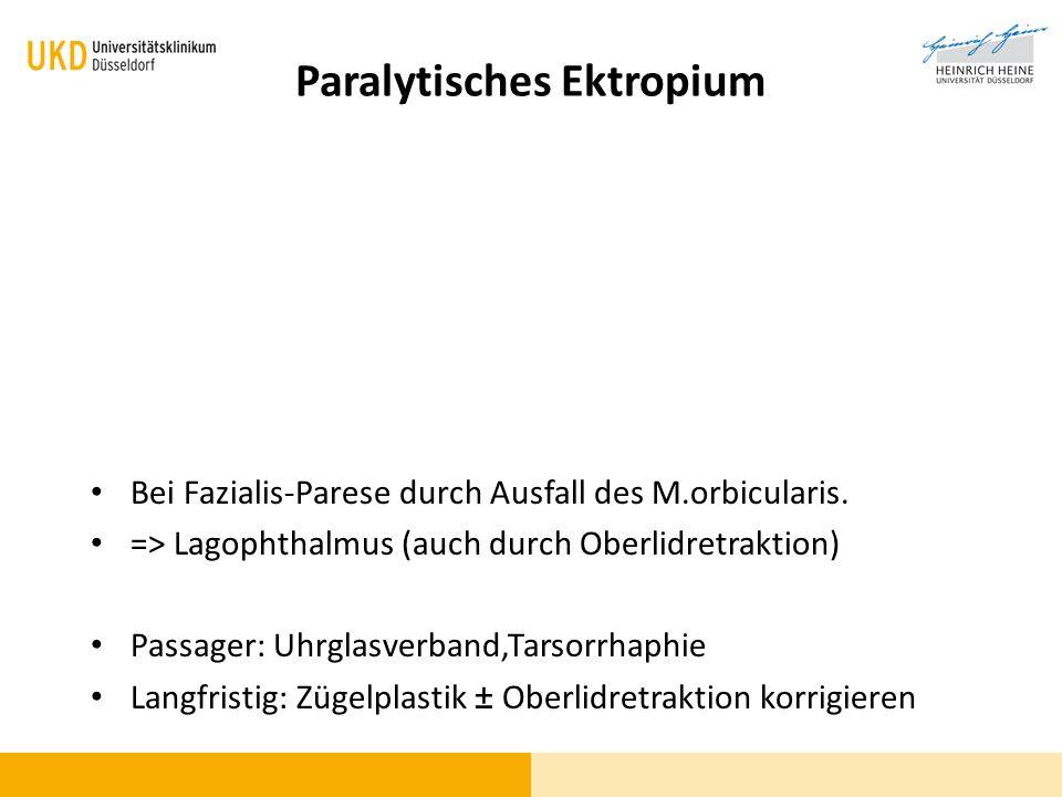 Paralytisches Ektropium